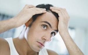 Alopecia e prp caserta